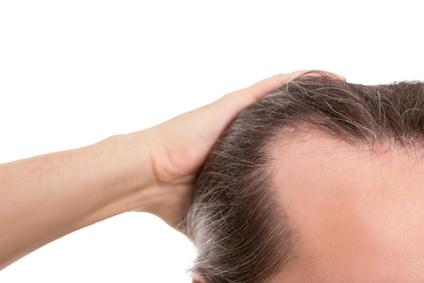Mann mit Geheimratsecken, Nahaufnahme freigestellt, Konzept Haar